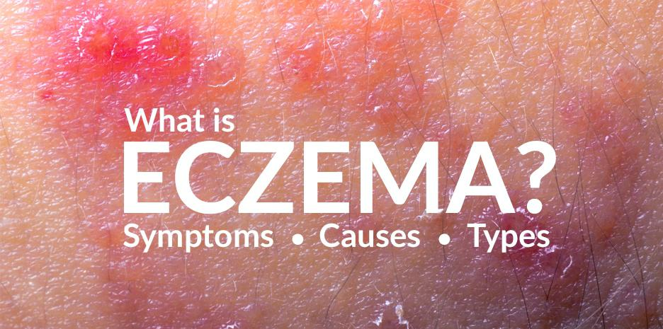 What is eczema? Symptoms, causes and the different types of eczema.