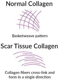 The collagen in scar tissue is different