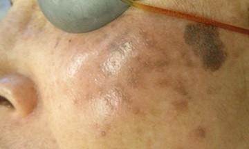 Melasma caused by PIH