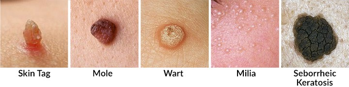 Skin Tags Causes Prevention Removal