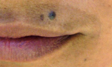 Un-stable Melasma on the upper lip