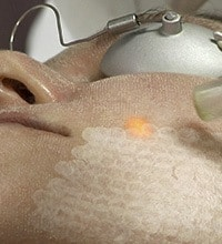 Removing the dead layer of epidermis