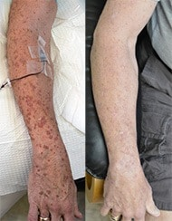 DSAP (disseminated superficial actinic porokeratosis) before and after treatment with with high dose ozone therapy