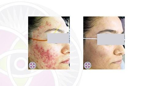 Before and after laser treatment for acne where we caught it early enough that the scarring resolved on its own
