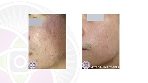 Before and after photo of successful acne scar removal after 4 treatments