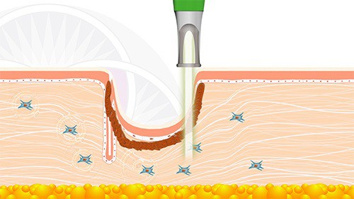 The first laser stimulates the fibroblast cells to generate new collagen