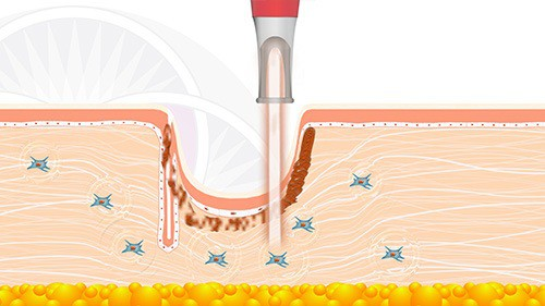 The second laser uses a coagulative energy the breaks down the scar tissue collagen