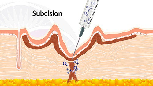 Sometimes these scar tissue adhesions need to be cut through, or release, with a procedure called subcision